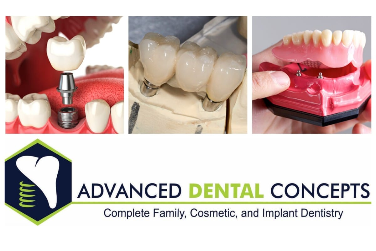 Dental implants by Advanced Dental Concepts can be a life-long restoration